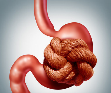 Nerwica żołądka: Przyczyny, objawy i leczenie