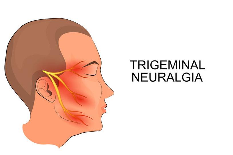 Neuralgia nerwu trójdzielnego /©123RF/PICSEL