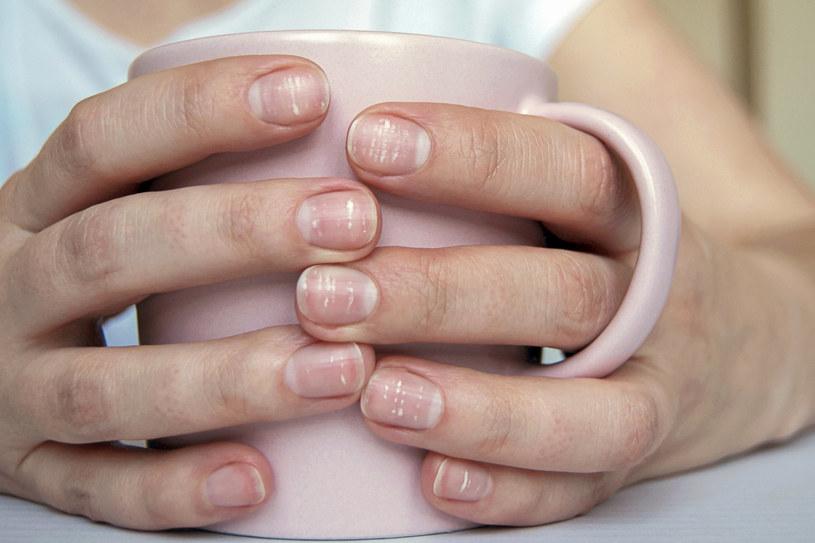 Nie ignoruj białych przebarwień na paznokciach /123RF/PICSEL