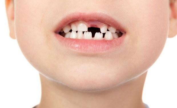 """Nie lekceważ mleczaków. """"Przedwczesna utrata zębów prowadzi do przykrych konsekwencji"""""""