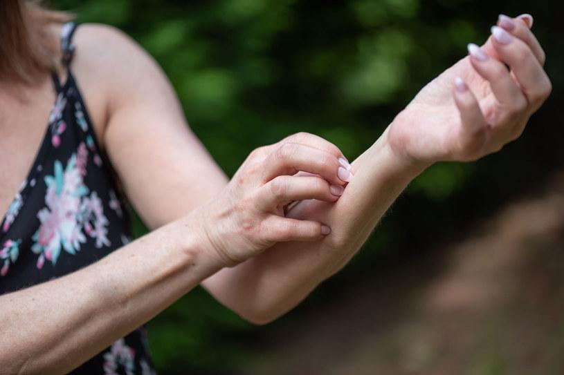 Nie możesz znaleźć przyczyny swędzącej skóry? Koniecznie wybierz się na badania /123RF/PICSEL