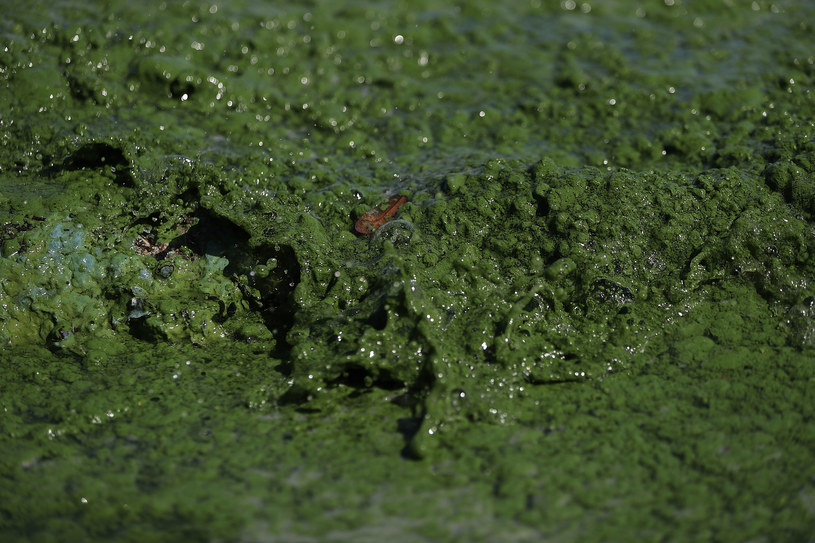 Niebiesko-zielone glony znane jako cyjanobakterie mogą uchronić przed skutkami zawału /AFP