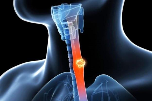 Niedługo będzie można przeżyć śmiertelną dawkę leku antynowotworowego /123RF/PICSEL
