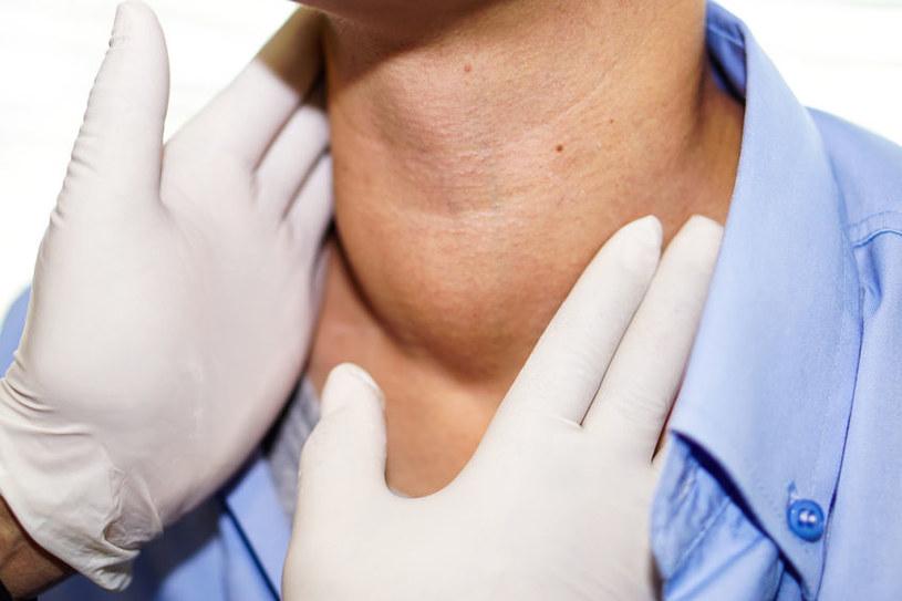 Niedobór jodu wywołuje choroby tarczycy i innych narządów /123RF/PICSEL