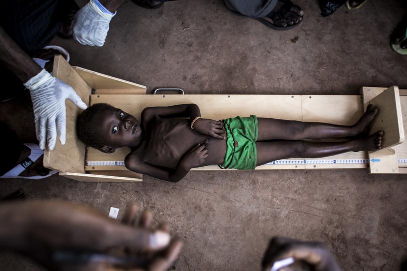 Niedożywiony chłopiec w ośrodku zdrowia w regionie Kasai w Demokratycznej Republice Konga /JOHN WESSELS /AFP