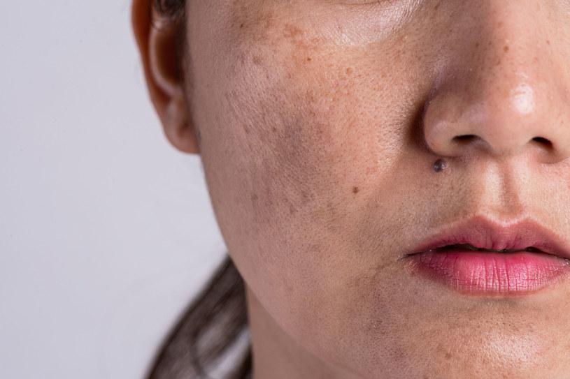 Niekiedy przebarwienia są tak widocznie, że trudno zakryć je makijażem /123RF/PICSEL
