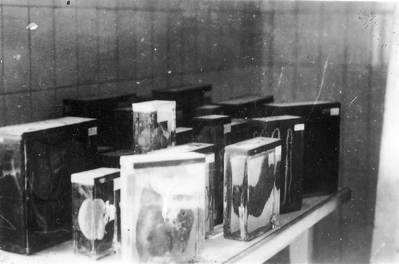 Niektóre z pozostałości po Ilse Koch /materiały prasowe