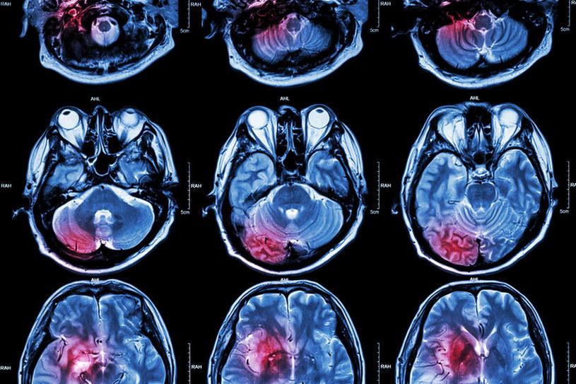 Niektórych guzów mózgu nie da się usunąć chirurgicznie /123RF/PICSEL
