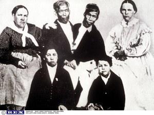 Nierozłączni: Historia braci syjamskich