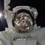 Niespodziewany problem zdrowotny astronautów