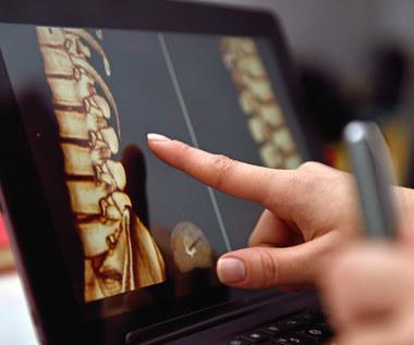 Nietypowe objawy chorego kręgosłupa