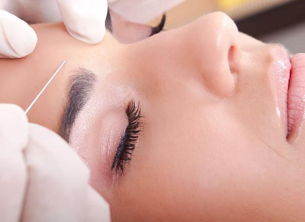 Nieumiejętne podanie toksyny botulinowej sprawia, że twarz staje się nieruchoma, skóra zbyt napięta, a powieki opuchnięte /Picsel /123RF/PICSEL