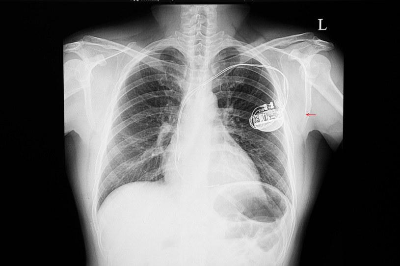 Niewydolność serca można przewidzieć z dużym wyprzedzeniem /123RF/PICSEL