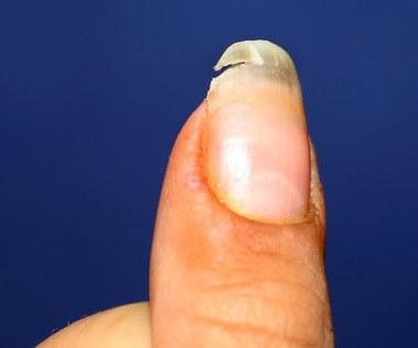 Niezawodne sposoby na rozdwajające się paznokcie