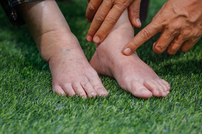 """Nogi puchną """"bez powodu""""? Być może brakuje ci ważnych witamin! /123RF/PICSEL"""