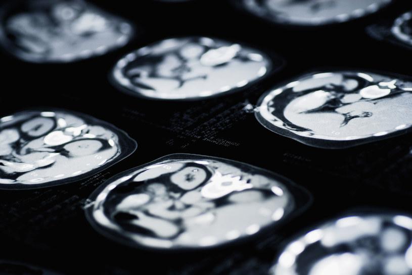 Nowa technika pomoże niszczyć komórki rakowe mózgu? /© Glowimages
