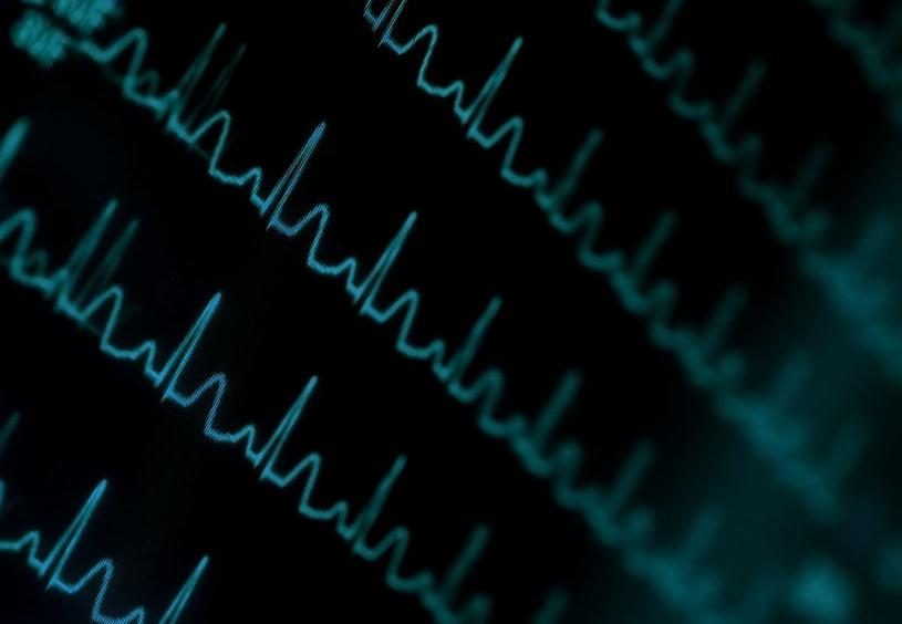 Nowo odkryta choroba genetyczna ma wpływ na krążenie oraz układ pokarmowy /123RF/PICSEL