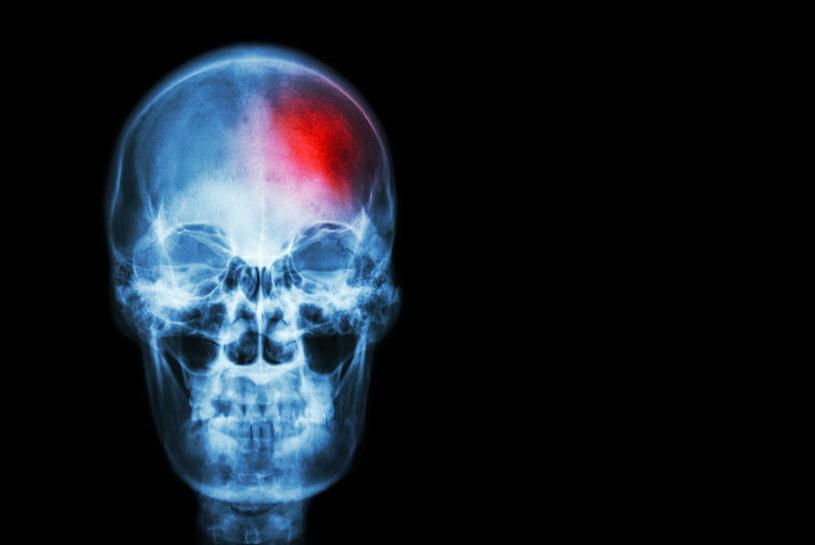 Nowo odkryte komórki macierzyste pomogą regenerować kości twarzy i czaszki /123RF/PICSEL