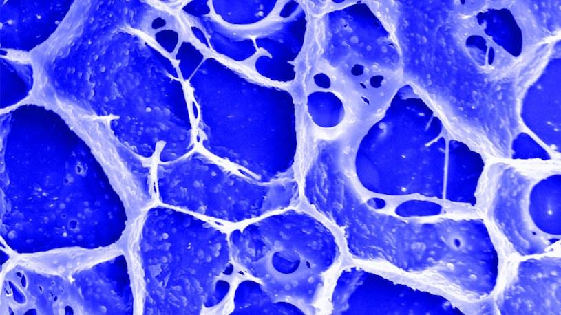Nowo stworzony żel pod mikroskopem /Fot. UCLA /materiały prasowe