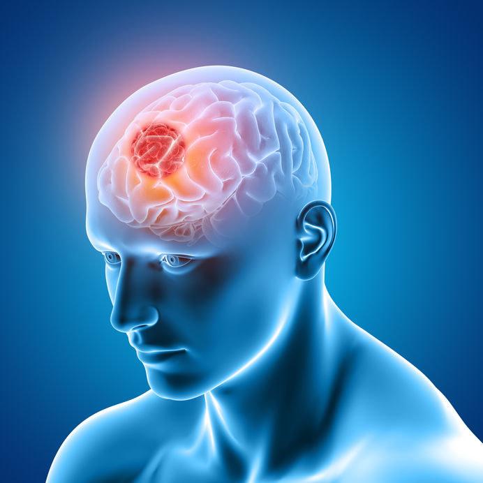 Nowotwór mózgu /©123RF/PICSEL