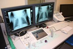 Nowy aparat RTG w Szpitalu Dziecięcym św. Ludwika w Krakowie