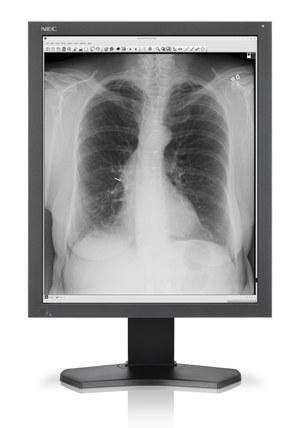 Nowy monitor medyczny NEC MD212G3 - obraz w skali szarości