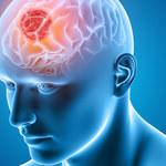 Nowy, nieinwazyjny sposób wykrywania guzów mózgu