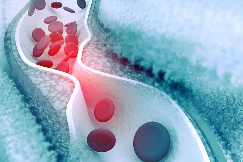 Nowy sposób na obniżenie poziomu cholesterolu we krwi /123RF/PICSEL