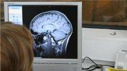 Nowy sposób na obrazowanie mózgu