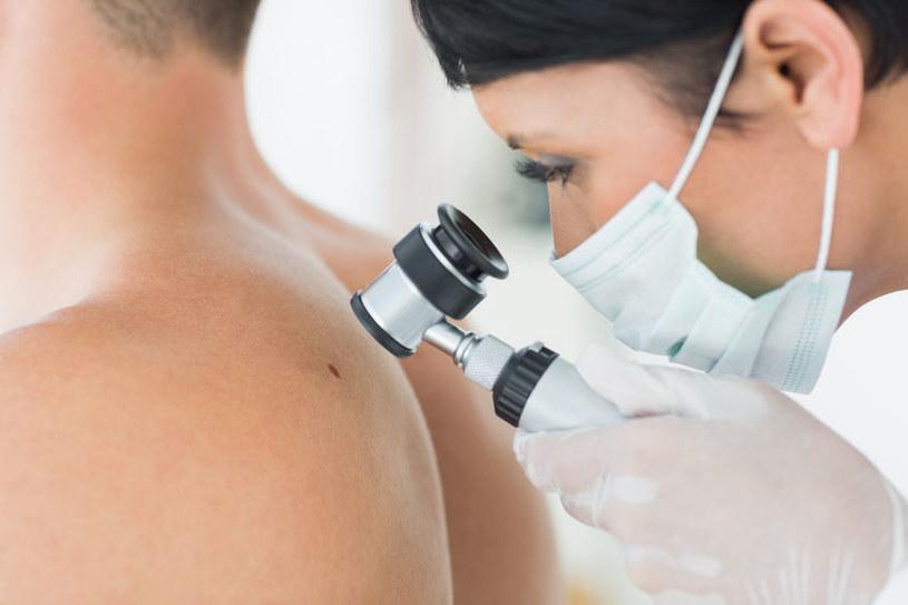 Nowy sposób walki z czerniakiem - lek z wirusem onkolitycznym /123RF/PICSEL