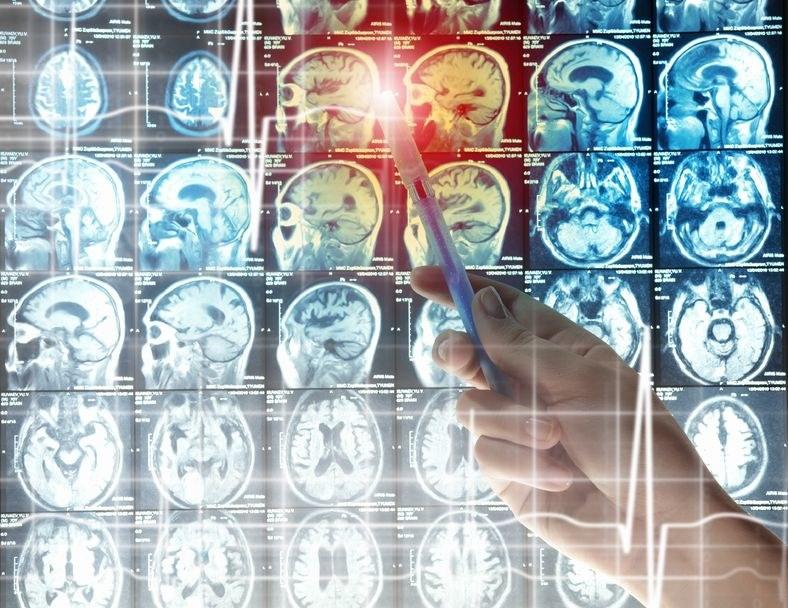 Nowy sposób walki z guzami mózgu /123RF/PICSEL