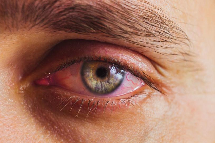 Nużeniec często atakuje oczy, a objawy łatwo pomylić z zapaleniem spojówek /123RF/PICSEL