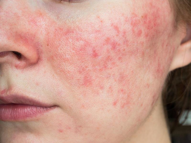 Nużyca może przypominać alergię lub trądzik /123RF/PICSEL