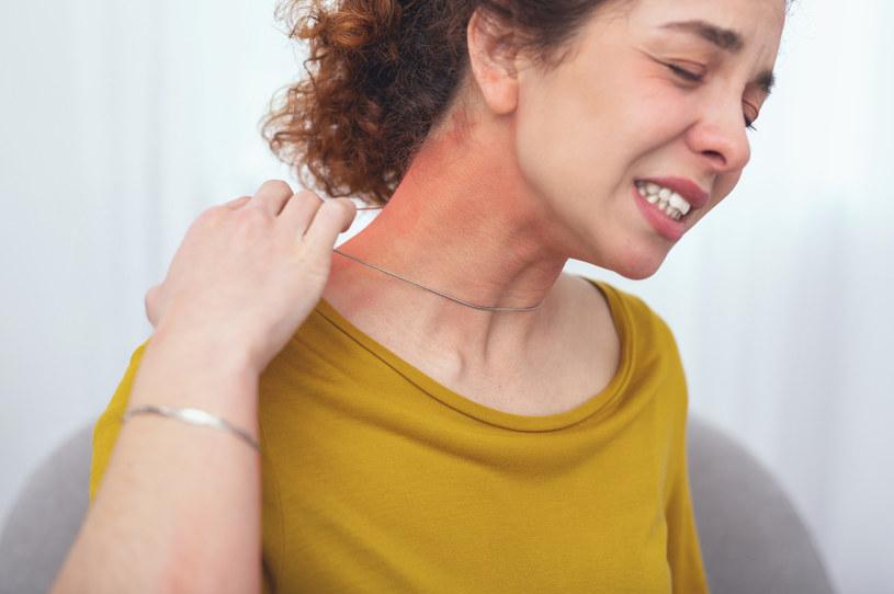 O alergii na nikiel świadczą głównie zmiany na skórze - w tych miejscach, w których miała ona kontakt z pierwiastkiem /123RF/PICSEL