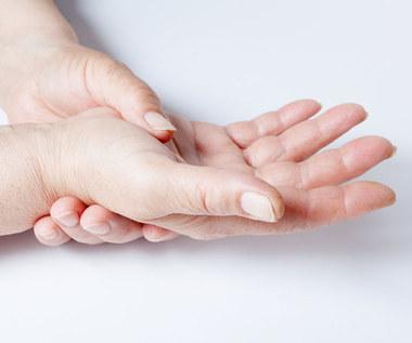 O czym mogą świadczyć opuchnięte palce?