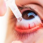 O czym mogą świadczyć przekrwione oczy?