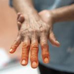 O czym może świadczyć czerwona skóra dłoni?