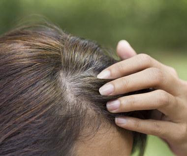O czym świadczą siwe włosy?