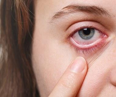 O czym świadczą worki pod oczami?