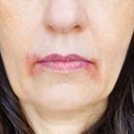 O czym świadczą zmiany na skórze?