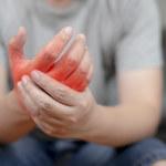 O czym świadczy drętwienie rąk?