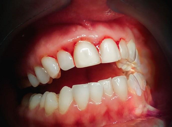 O czym świadczy krwawienie dziąseł? /©123RF/PICSEL
