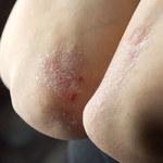O czym świadczy wysuszona skóra?