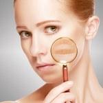 O jakich schorzeniach może świadczyć wygląd naszej twarzy?