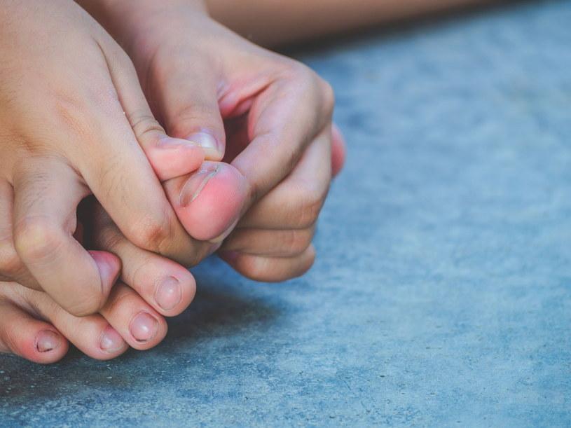 O naderwany paznokieć warto zadbać we właściwy sposób /123RF/PICSEL