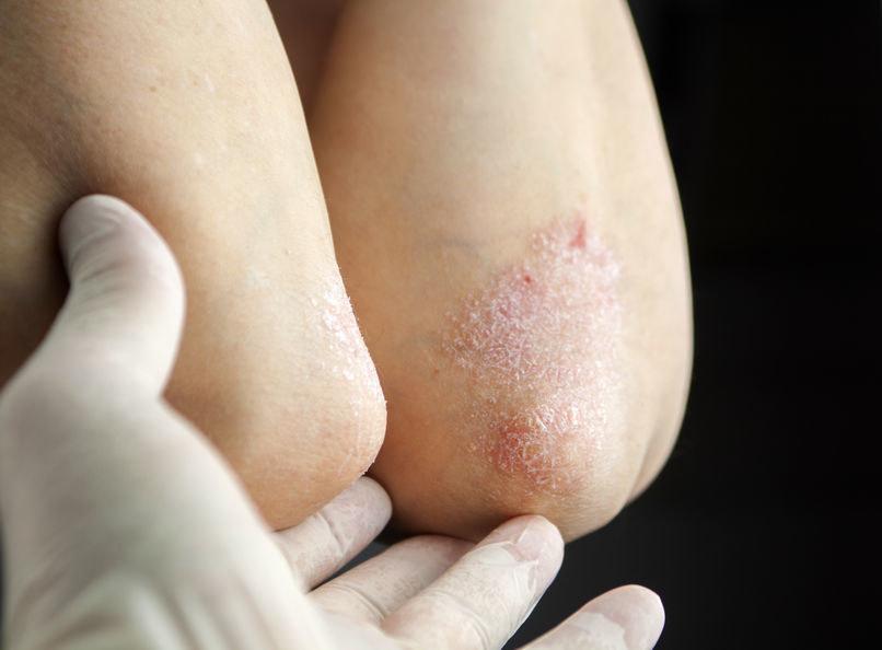 Objaw choroby tarczycy /©123RF/PICSEL