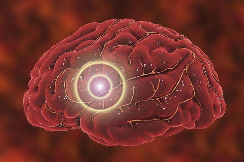 Objaw udaru i tętniaka /©123RF/PICSEL