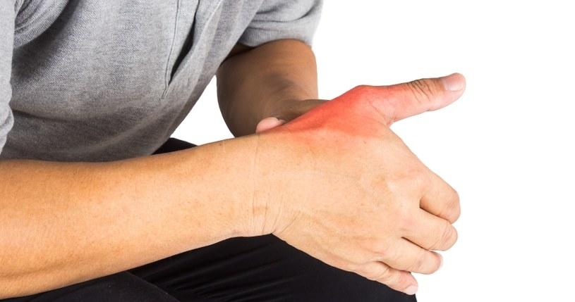 Objawem dny jest ból palców /©123RF/PICSEL