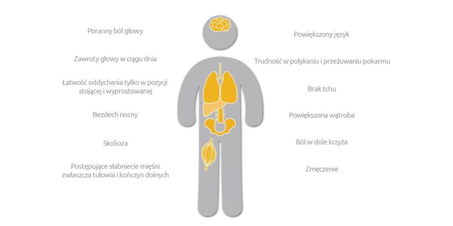 Objawy choroby Pompego /Materiały prasowe