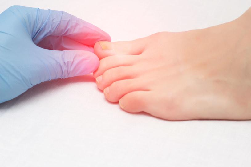 Objawy dermatologiczne są częścią tzw. długiego COVID /123RF/PICSEL